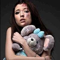 Flicka med blåmärken och teddybjörn.